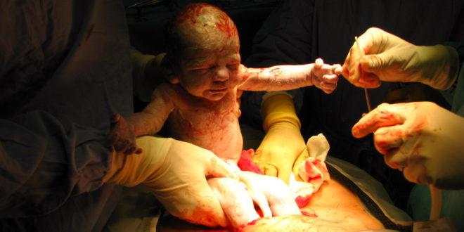 medicina-online-dott-emilio-alessio-loiacono-medico-chirurgo-roma-riflesso-di-moro-neonato-mamma-riabilitazione-nutrizionista-medicina-estetica-cavitazione-radiofrequenza-ecografia-pulsa